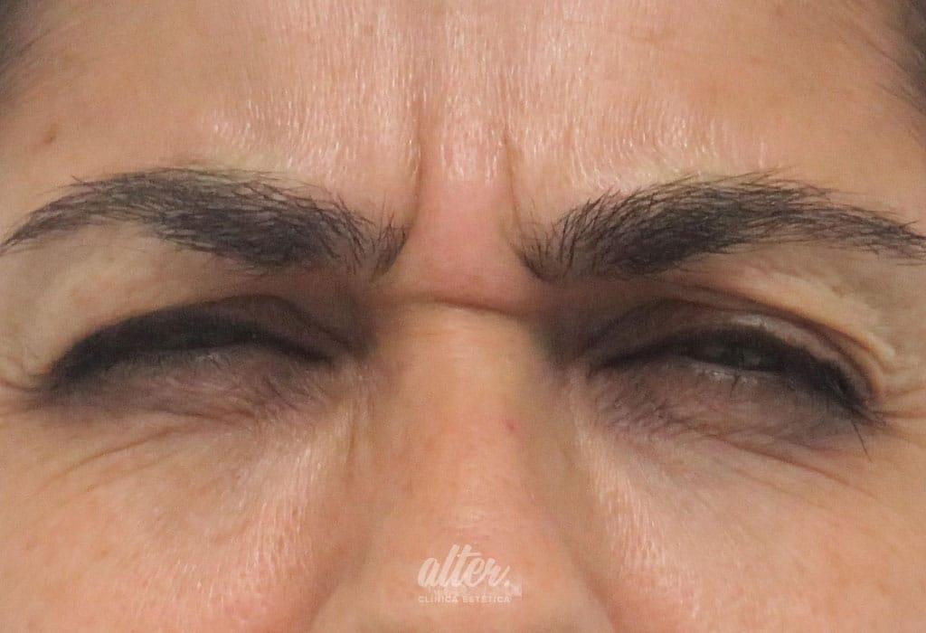 Antes-botox-entrecejo