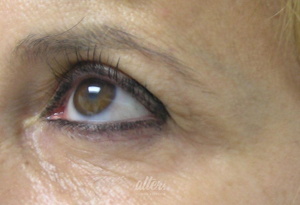 Despues-botox-ojos
