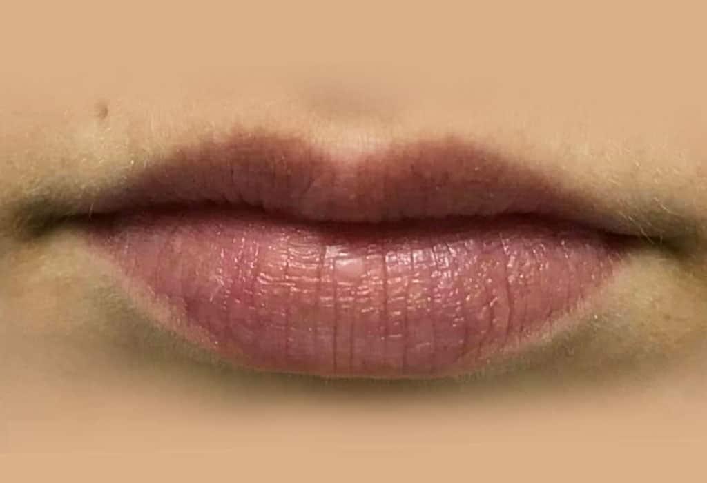antes-labios-web-caso3