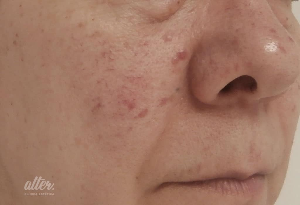 antes_16.07.13-laser-vascular-facial-(5)mejor