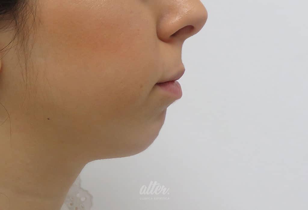 antes_800-800-labios