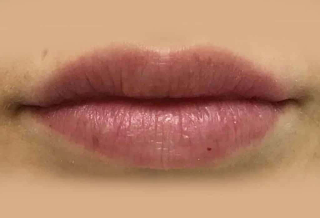despues-labios-web-caso3