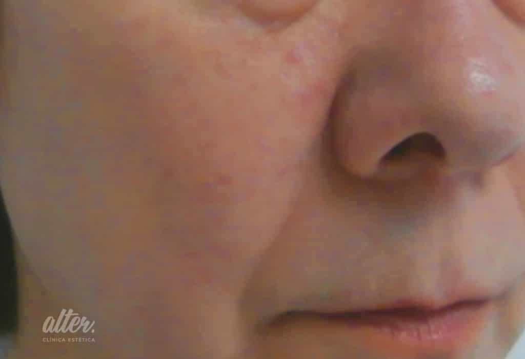 despues_16.07.13-laser-vascular-facial-(5)mejor